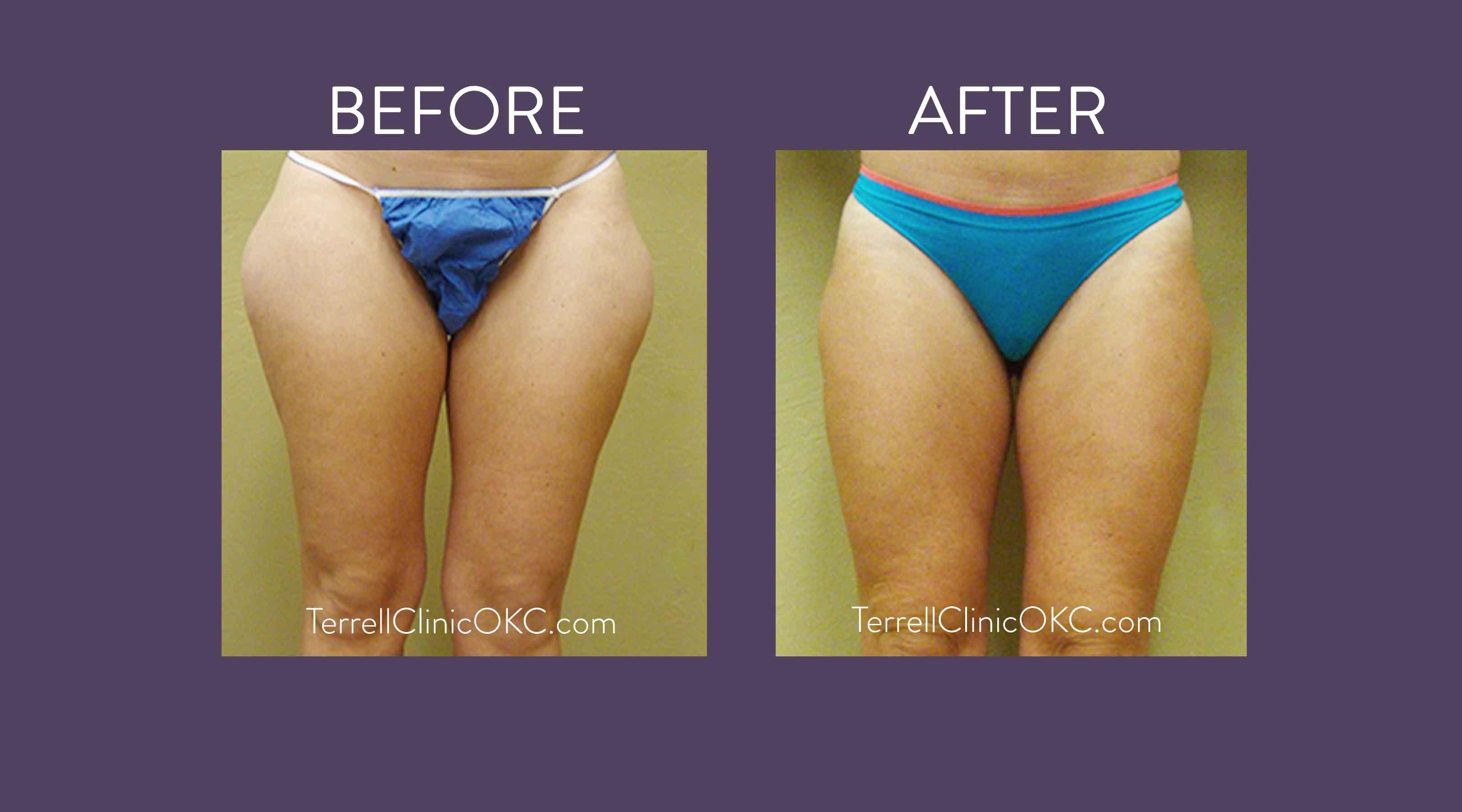 Smart Liposuction - Terrell Clinic in Oklahoma City