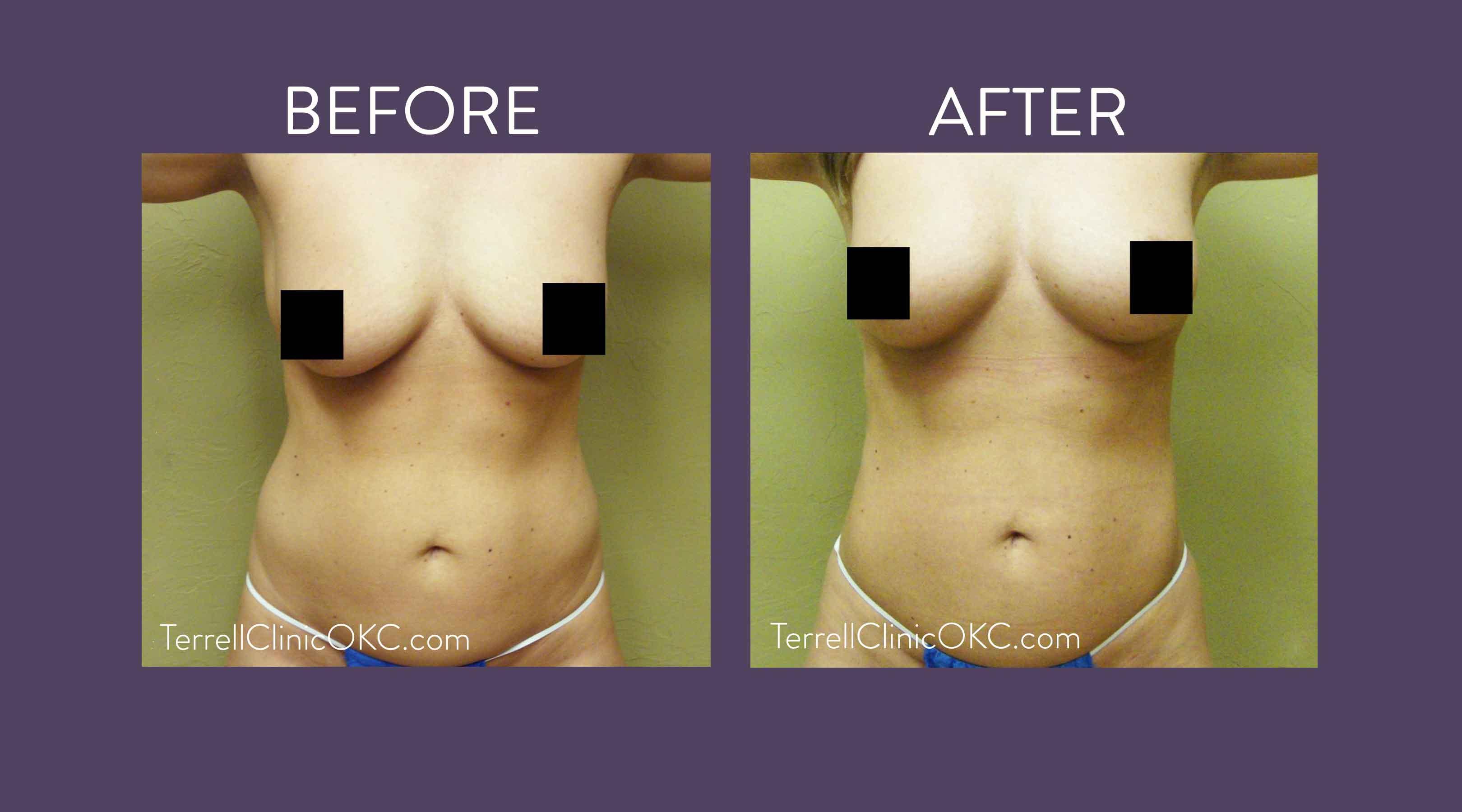Fat Transfer Procedures - Terrell Clinic In Oklahoma City-5614